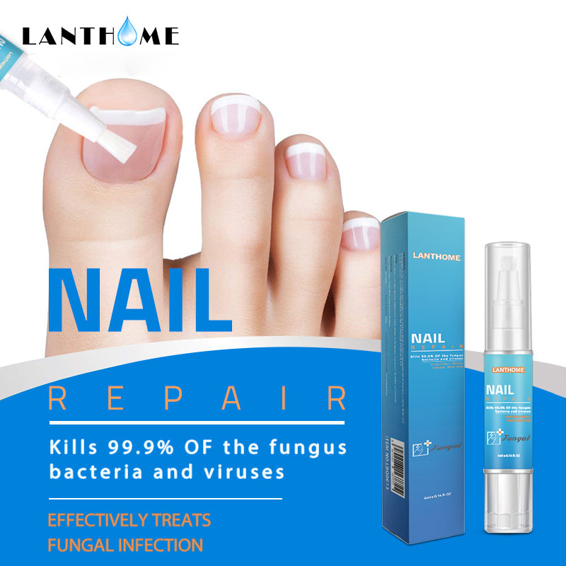 Powerful Nail Treatment Pen Onychomycosis Paronychia Anti Fungal Nail Infection Chinese Herbal Toe Fungus Care Repair Serum