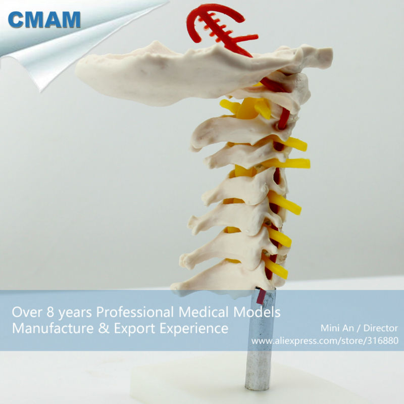 12386 CMAM VERTEBRA03 Cervical Vertebral Column with Neck Artery ...