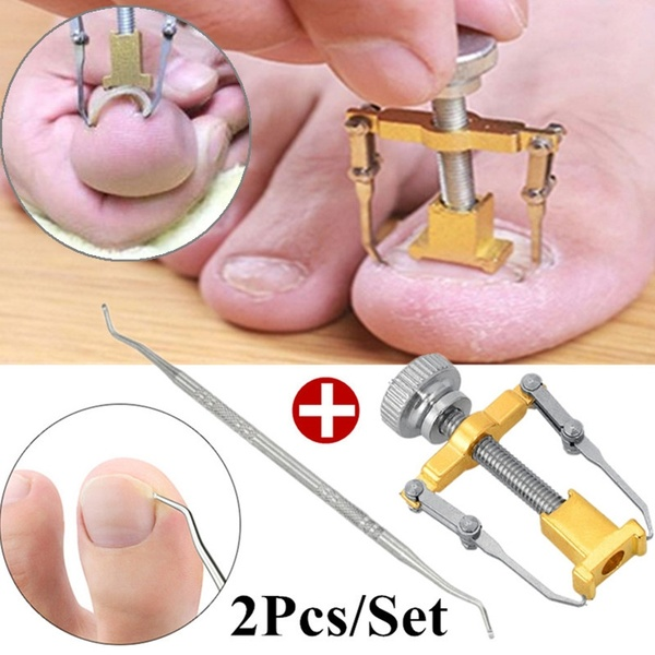 2pcs Ingrown Toe Nail Fixer Pedicure Recover Embed Toenail Correction Lifter Tool Set