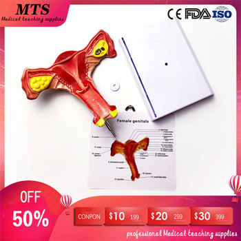 MTS uterus ovarian model Female reproductive structure anatomical model gynecology Urinary medical teaching model of the uterus genital anatomy model family planning teaching medical model female vagina and uterus model gasen sz023