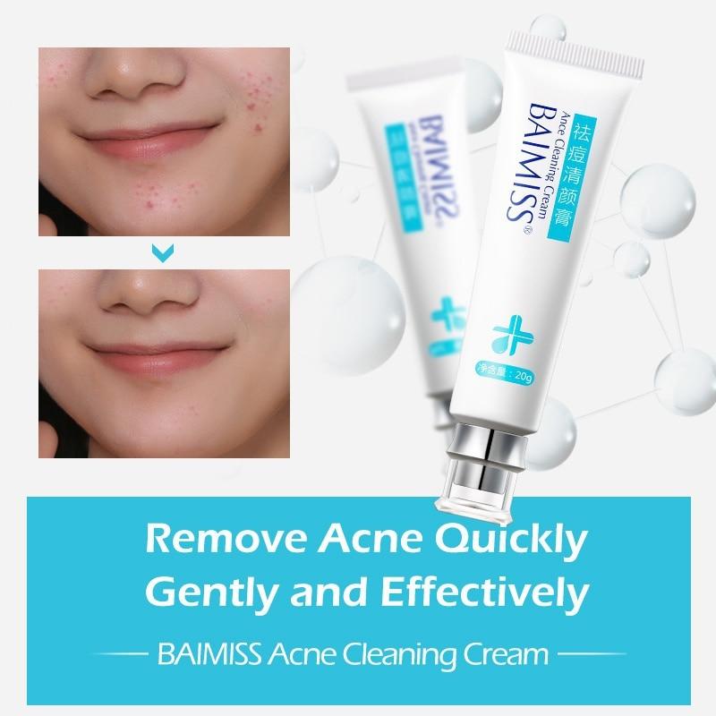 Acne čišćenje krema za njegu kože ukloniti popravak bubuljica - Briga o koži - Foto 4