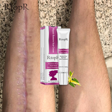 RtopR Acne Scar Stretch Marks Remover Cream Skin Repair Face