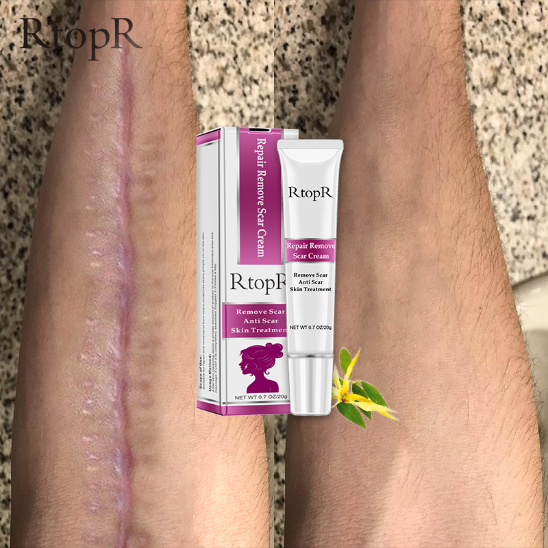 Top 8 Most Popular Face Scar Removal Cream Brands And Get Free