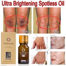 Ультра осветляющее безупречное масло для ухода за кожей, темные пятна, удаление ожогов и растяжек, удаление шрамов, осветляющая эссенция для кожи, 10 мл