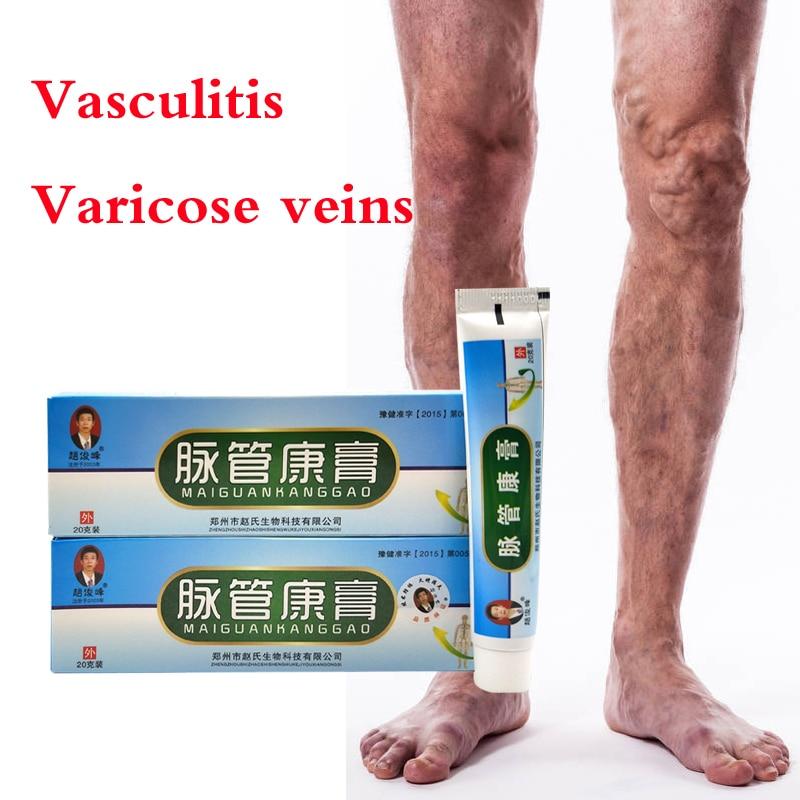 10pcs Varicose Veins Treatment Ointment Vasculitis Phlebitis Spider Veins Pain Varicosity Angiitis R