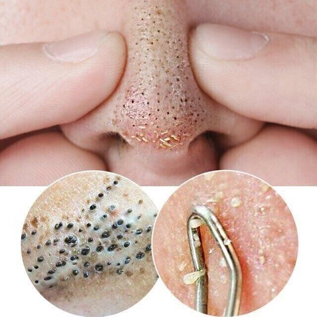 Bamboo Charcoal Black Mask Peel Off Nose Blackhead Dead Skin Clean Blackhead Pores Shrink Face Care 120g 1