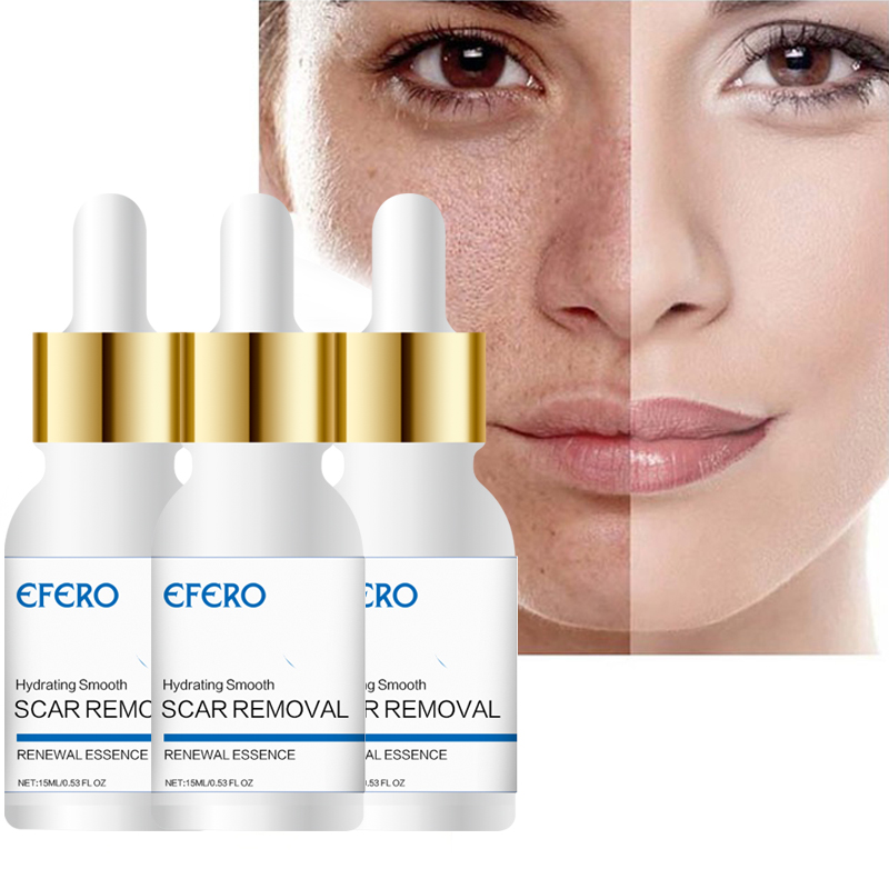EFERO Moisturizer Face Serum Shrink Pores Anti Age Wrinkle Acne Treatment Essence Whitening Cream