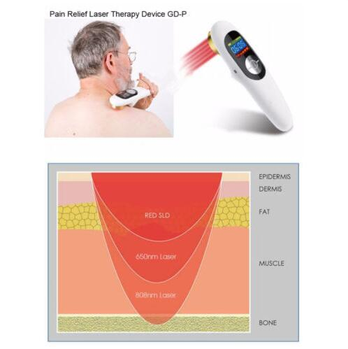 Купить с кэшбэком Pain Relief Wound Healing Laser Therapeutic DeviceLllt Cold Laser Medical Therapeutic Machine Laser Therapy
