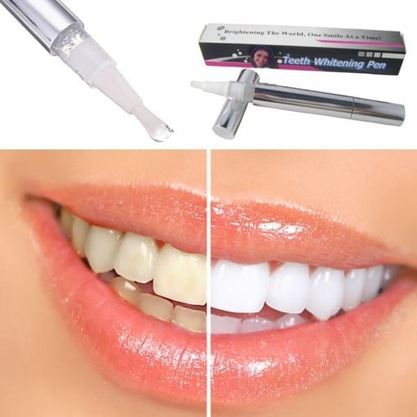 Popular pluma blanqueadora de dientes blancos blanqueador de Gel dental blanqueador eliminar manchas higiene bucal Venta caliente