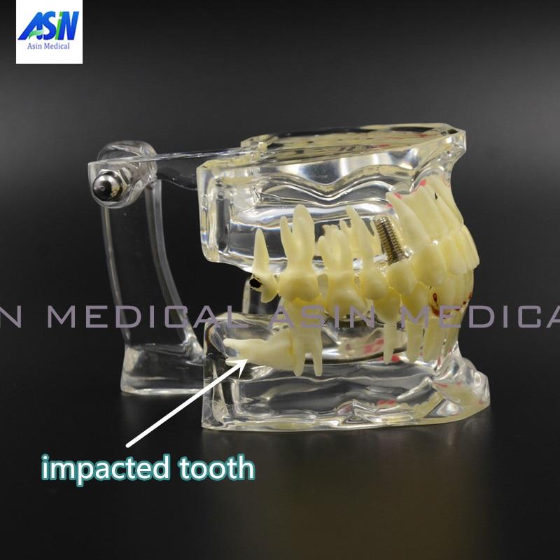 Extrusion pathologique de dent de maladie d'implant dentaire manquante avec le modèle d'implant pathologique dentaire de dent impactée