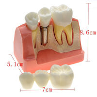 Dental Demonstration Teeth Model Implant Analysis Crown Bridge