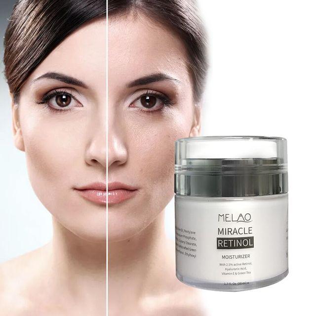 MELAO 50g 2.5% Retinol Face Moisturizer Cream Anti Aging Active Hyaluronic Acid & Vitamin E Day Cream Skin Whitening E