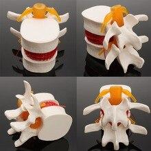 Anatomia humana esqueleto coluna lombar disco hérnia modelo de ensino crânio cérebro traumático pistola material escolar instrumentos médicos