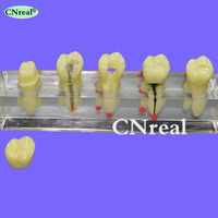 1 piece Dental Root Canal Treatment (RCT) Teeth Model Oral Endo For Teaching & Communication