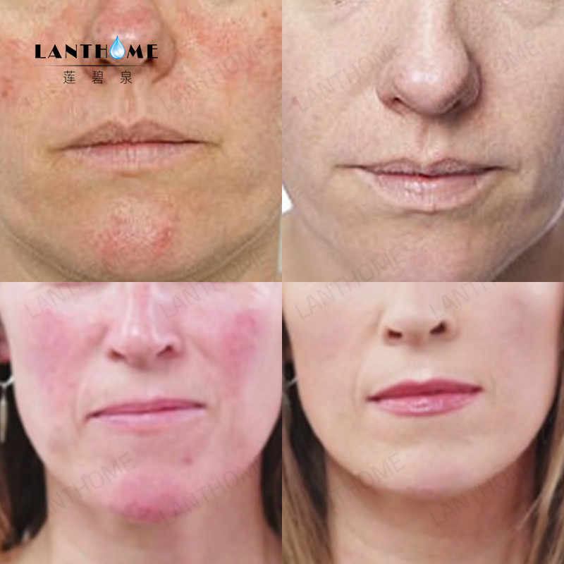 acne rosacea treatment