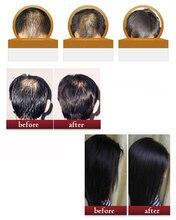 Professional Anti Hair Loss Hair Growth Liquid Spray for Women Men Hair Regrowth Dry Hair Repair Moisturizer Treatment Serum