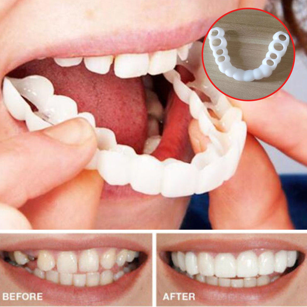 Beautiful Teeth Cover Denture  Instant Smile Comfort Fit Flex Cosmetic Teeth Denture Teeth Top Cosmetic Veneer