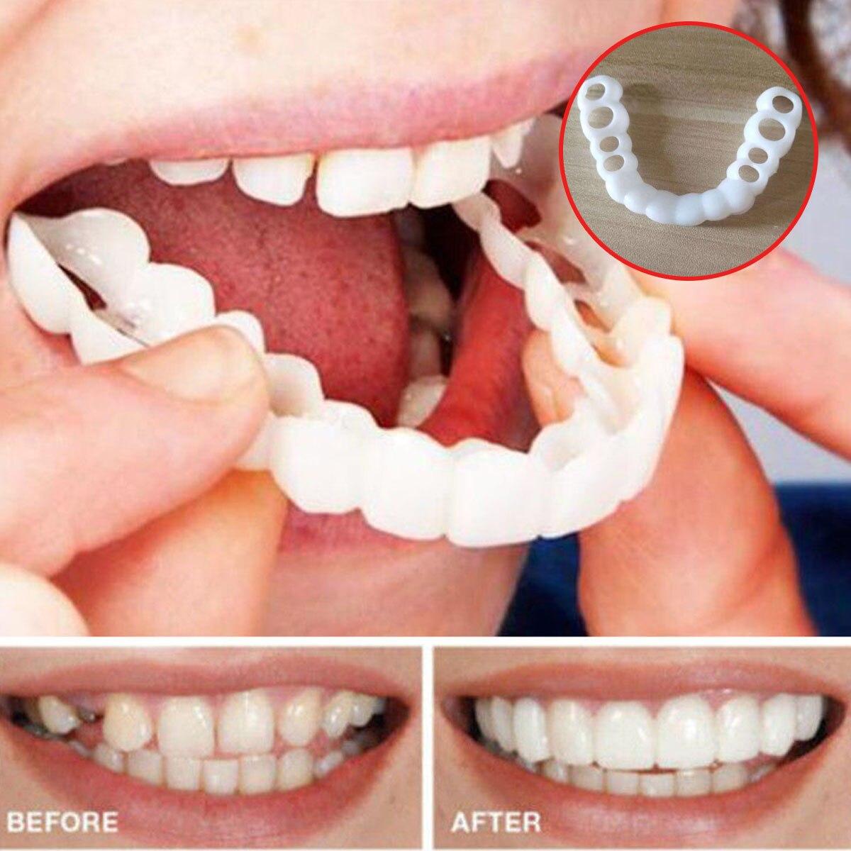 Beautiful Teeth Cover Denture  Instant Smile Comfort Fit Flex Cosmetic Teeth Denture Teeth Top Cosmetic Veneer