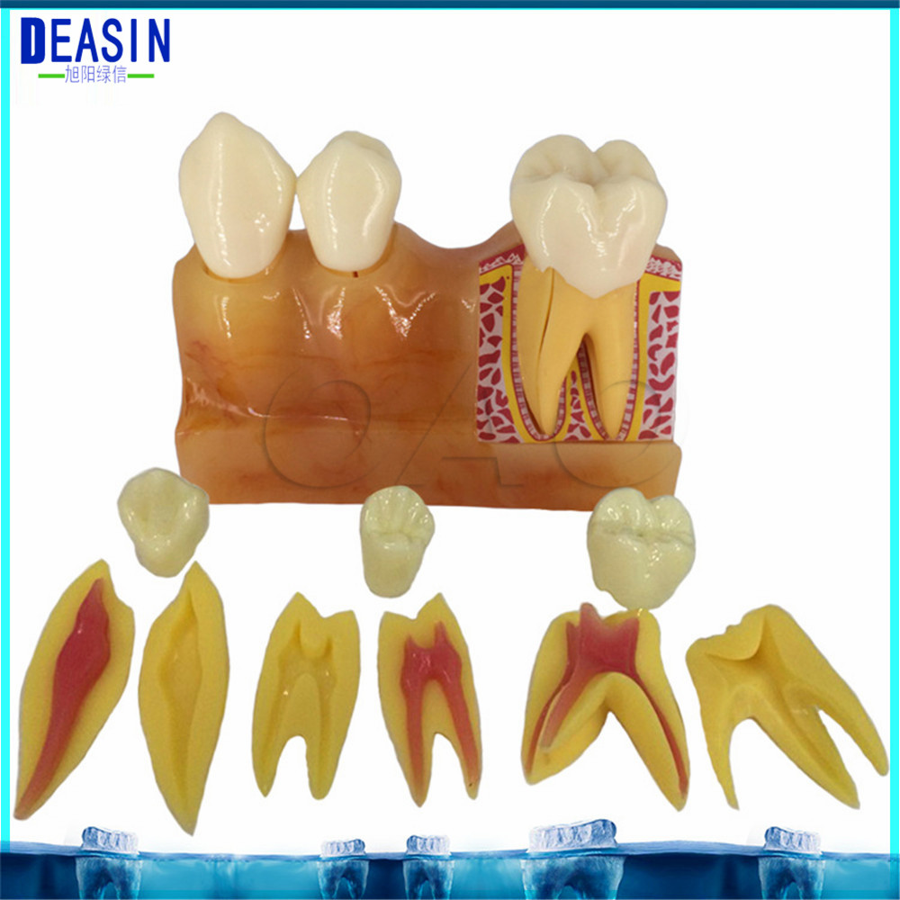 4 times tooth decomposition model Teaching explanation Dental pulp anatomic oral model Tooth removable sagitally section model about tissue decomposition model for doctor patient communication model with magnetic