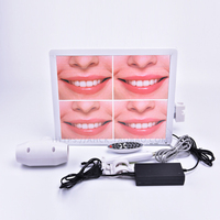 High Definition Oral Cavity Endoscope Intraoral Camera 17inch 5 mega pixel with Wifi Y