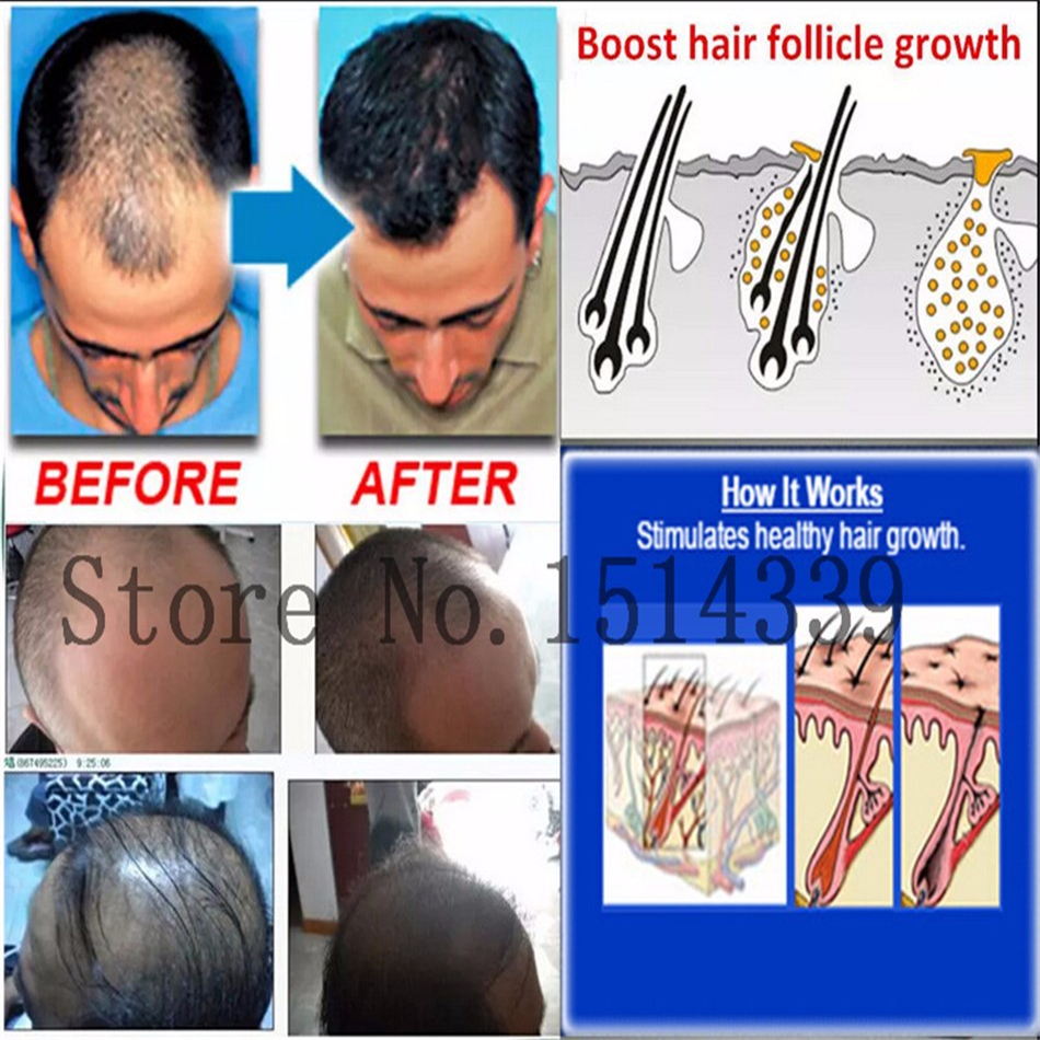 Natural Hair Regrowth Treatment For Men