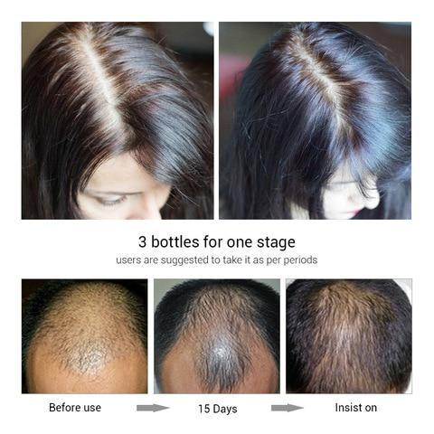 LANBENA 20ml Fast Powerful Hair Growth Essence Spray Hair Products Hair Serum Treatment Preventing Hair Loss Care Karachi