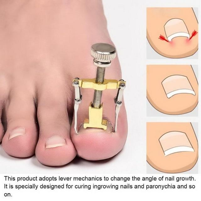 Ingrown Toe Nail Correction Tool Fixer Recover Paronychia Brace Tools Toenails Pedicure