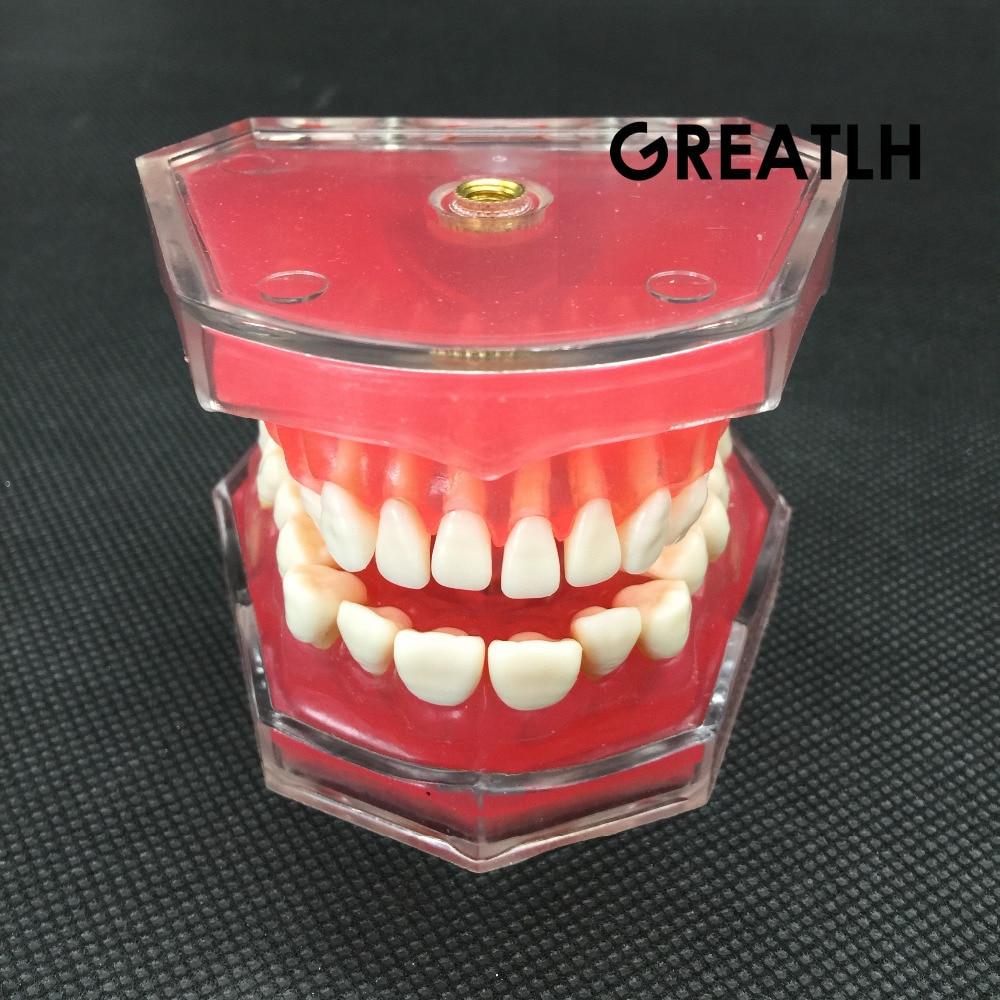 Dental Study Teaching Model Standard Model Removable Teeth Soft Gum ADULT TYPODONT Model soarday dental standard model tooth removable soft gums dental teaching dentist communication model