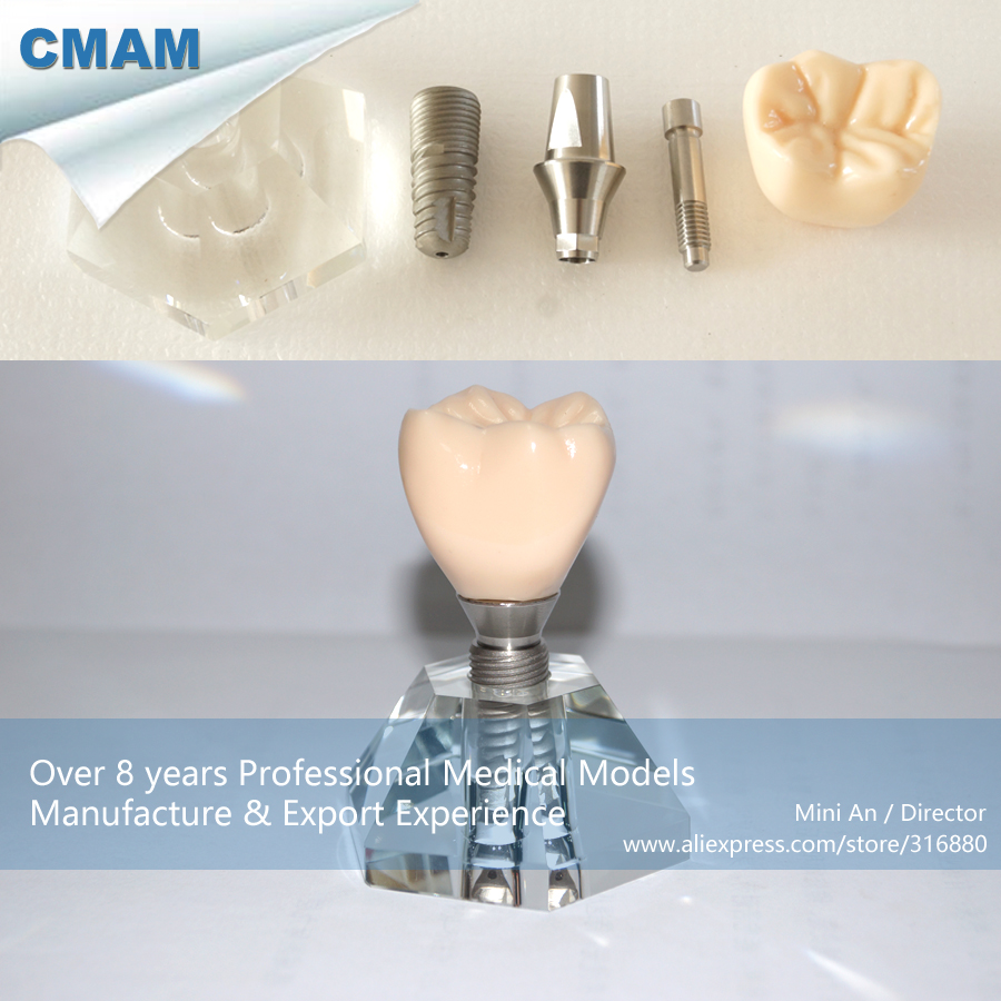 DH/13164, Tooth Implant Anatomy, Implant Model, 3 parts, Educational Teaching Anatomical ModelsDH/13164, Tooth Implant Anatomy, Implant Model, 3 parts, Educational Teaching Anatomical Models