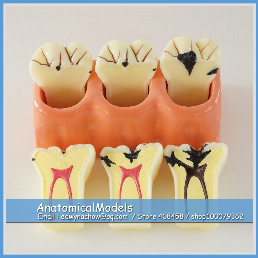 ED-DH1301 Enlarge 4x Caries Disassembling Model , Medical Science Educational Dental Teaching Models love for three oranges vocal score
