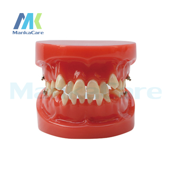 Manka Care - Orthodontic Model/24pcs Tooth ,Without bracket Oral Model Teeth Tooth Model