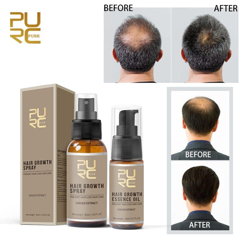 PURC Fast Growth Hair Essence Essential Oil Liquid Treatment Preventing Hair Loss And Hair Grwoth Spray Hair Care
