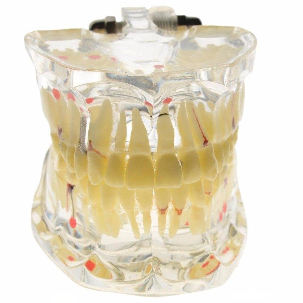 1 pc modèle de pathologie dentaire adulte modèle de dents de maladie d'implant dentaire dentiste pour la Science médicale enseignement étude outils de dentisterie
