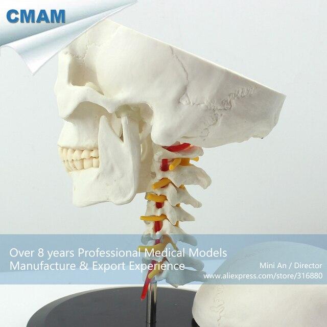 12332 Cmam Skull06 Human Skull On Cervical Vertebraespine