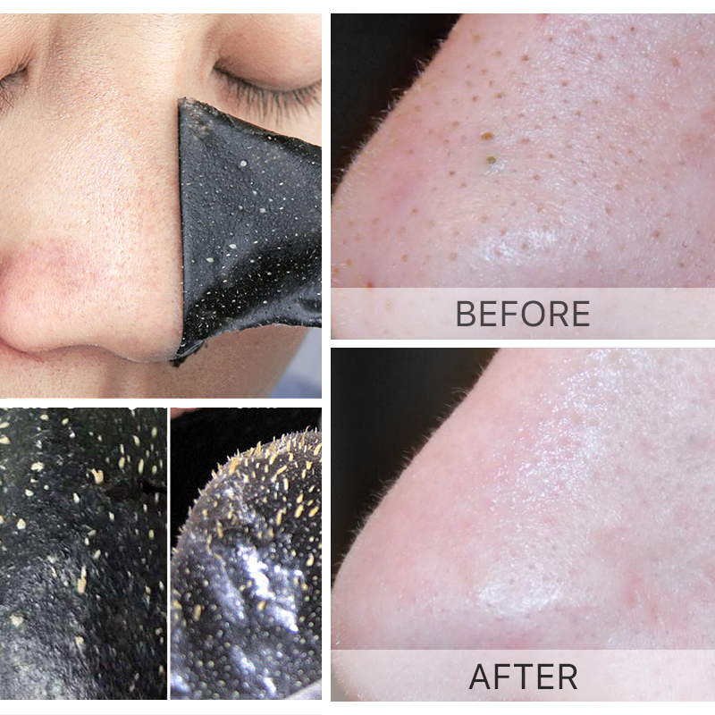 20pcs Blackhead Remover Nose Mask Pore Strip Black Mask Peeling Beauty face Mask face care Blackhead Remover Skin Care 1