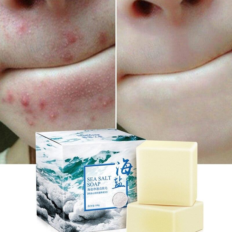 100g Sea Salt Clear Soap Handmade Pimple Pores Acne Treatment Soap Goat Milk Moisturizing Face Wash Skin Care Products Savon
