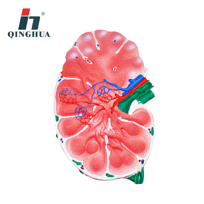 Lymphonodus Magnifying Model Human Realistic Organ Magnifying Lymphoid Organ Model Biology Teaching Science Education InstrumentLymphonodus Magnifying Model Human Realistic Organ Magnifying Lymphoid Organ Model Biology Teaching Science Education Instrument