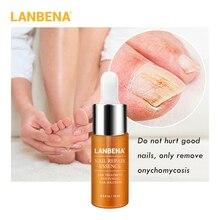 LANBENA Nail Repair Essence Serum Fungal Nail Brightening Treatment Remove Onychomycosis Toe Nail Nourishing  Hand And Foot Care
