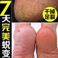 Трещины Пятки Крем Для Ног Пилинг Трещины руки и ноги и hands Dry Skin Repair Anti Crack Крем Китайский Лекарственные Мази кожи