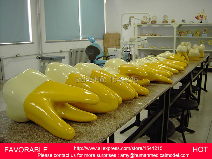 DENTAL CARIES MODEL,DENTAL DENTAL MODEL ,DENTAL CAST MODEL FOR DEPARTMENT ,15 TIMES THE BIG FRONT TEETH MODEL-GASEN-DEN025 soarday dental endodontic restoration model teaching communication model pathological display dental caries