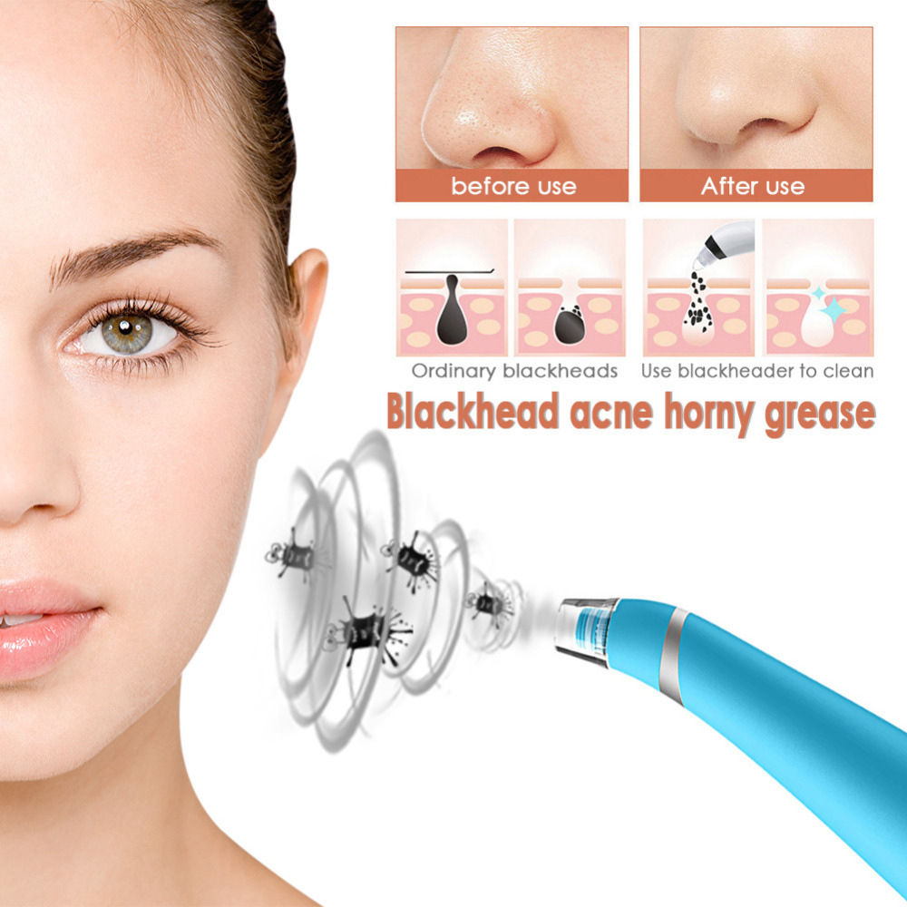 Blackhead Cleansing Acne Remover Electronic Facial Pore Cleaner ...