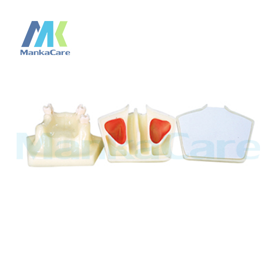 Manka Care - The bottom of the maxillary sinus ascension practice using a toothless jaw maxilla model Oral Teeth Tooth Model