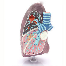 Diseased Lung Medical Model Pulmonary Anatomy Respiratory System for Patient Education