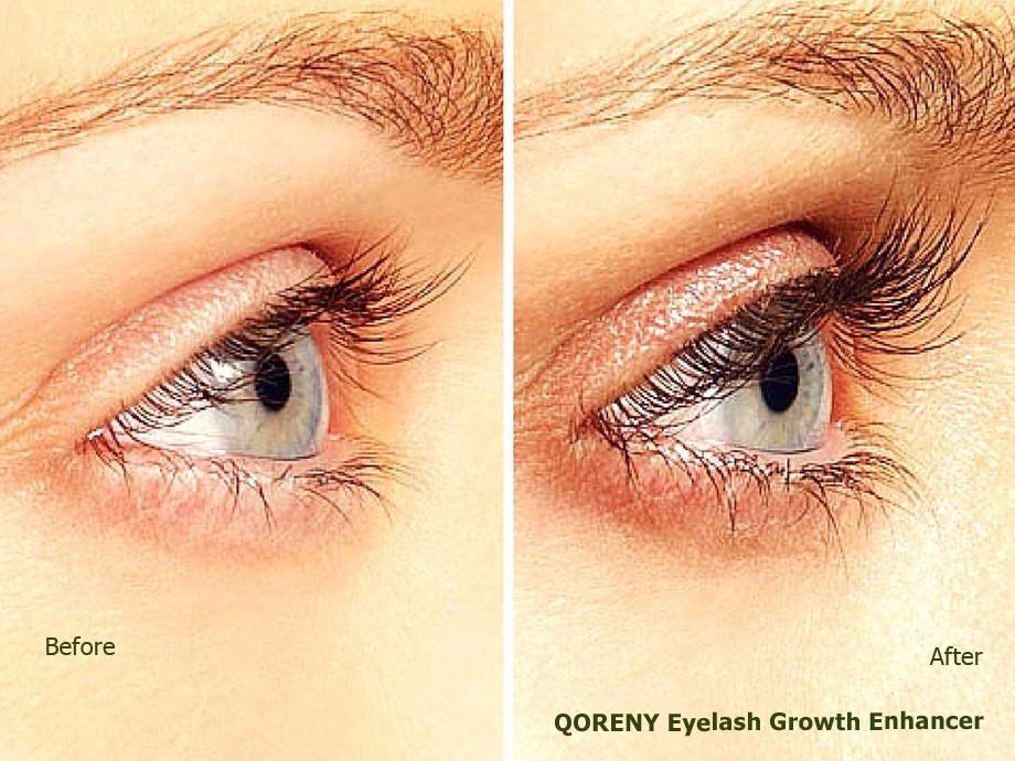 eyelash-growing-serum