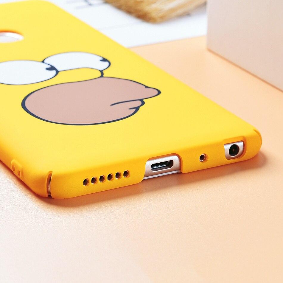 TOMKAS Cute Cartoon Case for Xiaomi Redmi Note 5 Mi A1 Phone Case for Xiaomi Redmi 4X 5 Plus Cases Back Cover Funny Naked Banana (7)