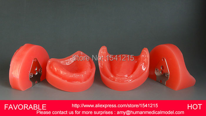ORAL TEETH MODEL,MANDIBULAR IMPLANT DENTAL DENTAL MODEL ,NATOMIACL TOOTH MODELS,MOUTH ORAL CARE MODEL-GASEN-DEN014 dental teaching model adult dental teeth model anatomiacl tooth models mouth oral care cleft lip stitched model gasen den0020