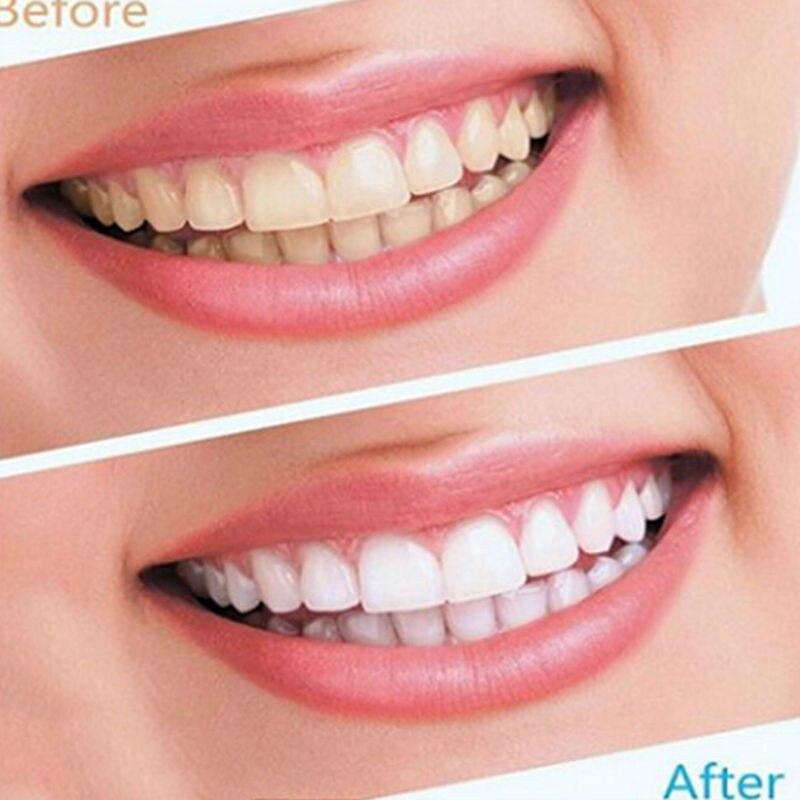 1 Pequeno Saco De Clareamento Dos Dentes Tira Dente Dental