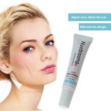 Nuobisong facial scar removal Striae Gravidarum Pigmentation Corrector Anti-Aging cremas face Spots treatment stretch 1pcs
