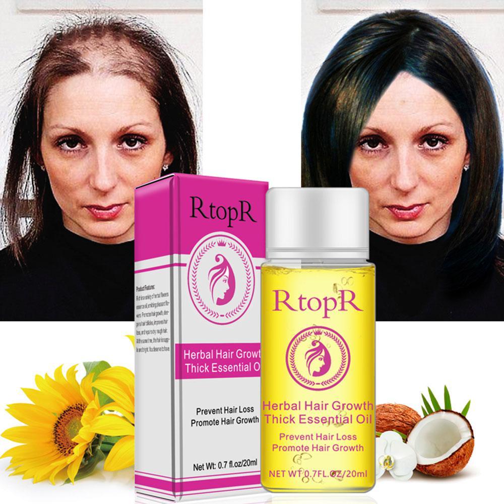 20ml Hair Oil Fast Hair Growth Essence H