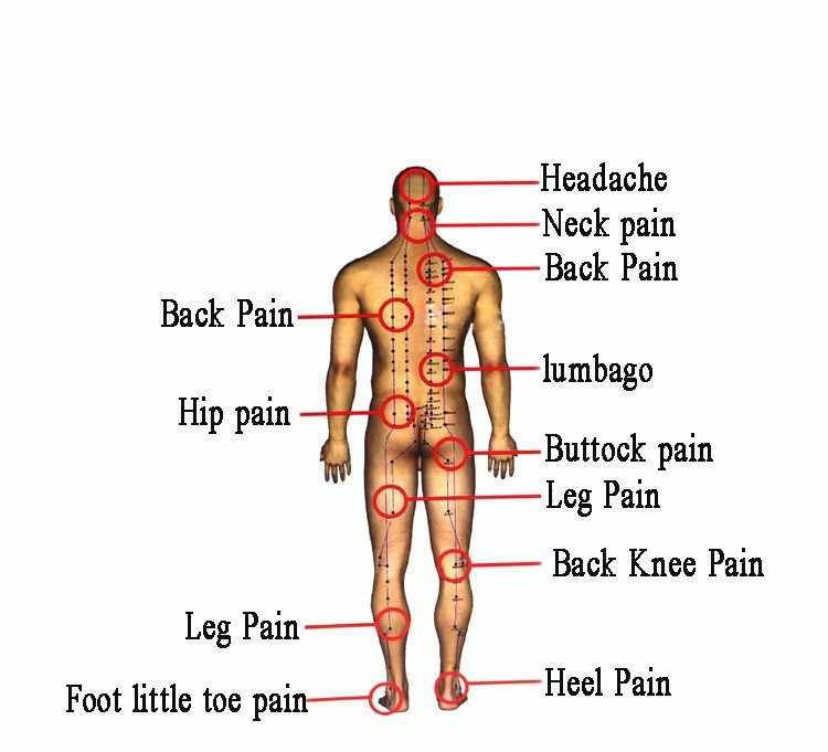10 Patch Vietnam baume du tigre Patch anti-douleur plâtre médical, plâtre anti-douleur médicamenteux chaud, soulagement des douleurs musculaires